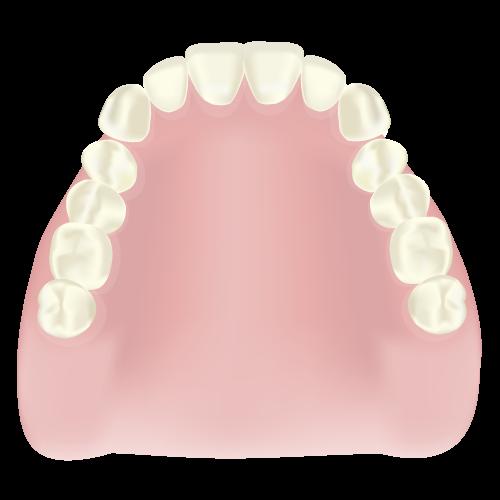レジン床入れ歯(保険)