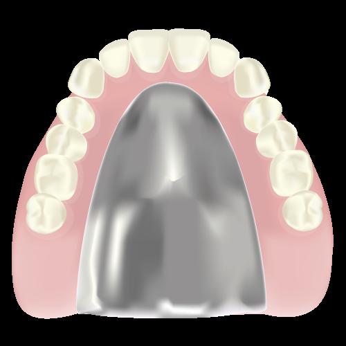 金属床入れ歯(自費)