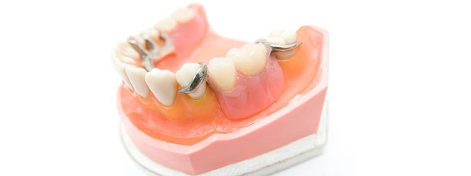 部分入れ歯の方によくあるお悩み